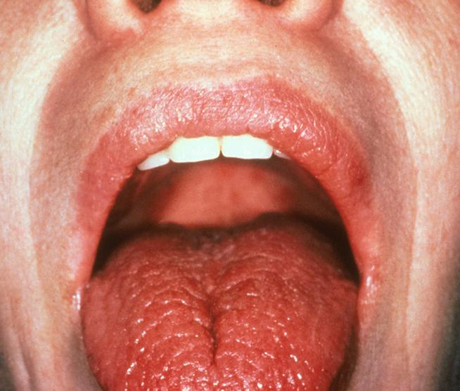 Онемение нижней губы ботокс - 5a