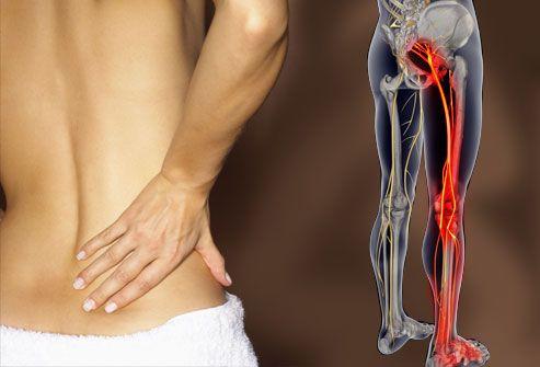 Причина боли в ягодице отдающая в ногу как лечить