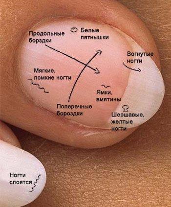 Каких болезнях могут рассказать ногти