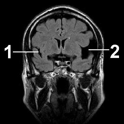 белое вещество головного мозга состоит из