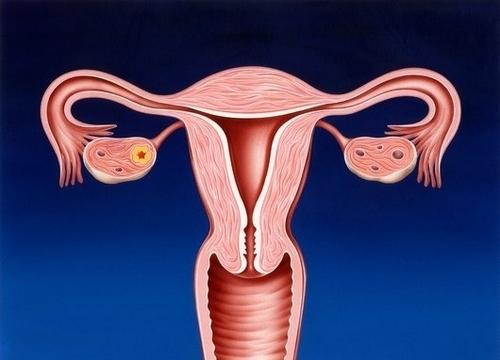 atreziya-vlagalisha-pri-atroficheskom-vaginite
